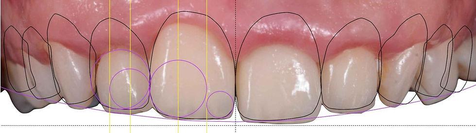 Digital Smile Design - DentalDynamic Leeuwarden