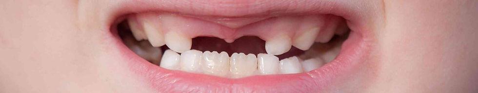 Tanden wisselen.jpg