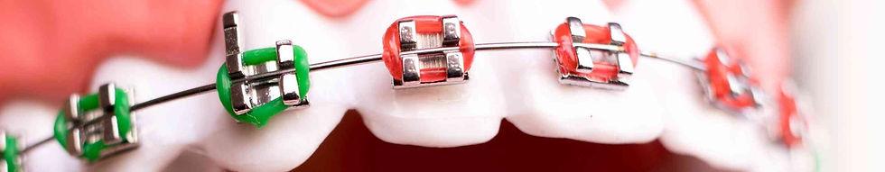 orthodontie.jpg