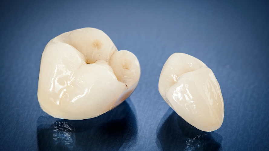 Kronen & Bruggen - Tandartspraktijk DentalDynamic Leeuwarden