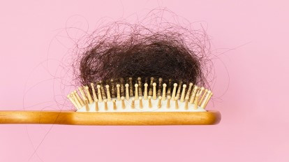 Hair Loss: 4 Root Reasons Why Your Hair Is Falling Out