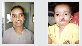 Creating New Smiles and Lives in India
