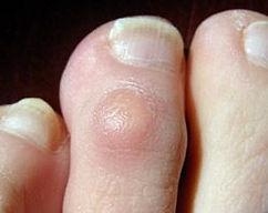 nails corns.jpg