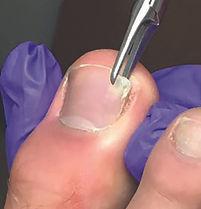 nail surgery.jpg