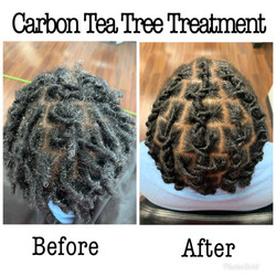 Carbon Tea Tree Treatment