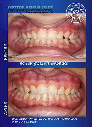 ortho , Ortega Dental Care in San Juan C