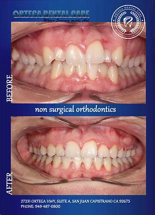 Ortho  PT , Ortega Dental Care.jpg