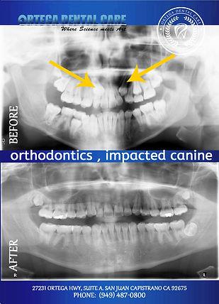 Ortega Dental care , (949)487-0800-impac