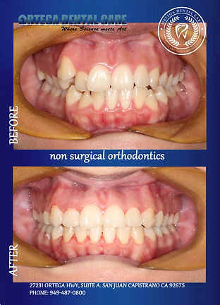 Ortho , ortega dental care..jpg
