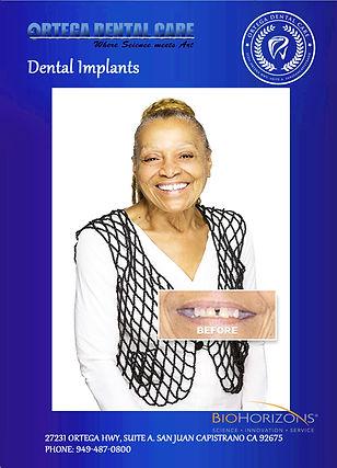 dental implants , ortega dental care . D