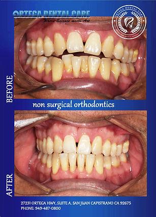Ortega Dental care , (949)487-0800 (02).