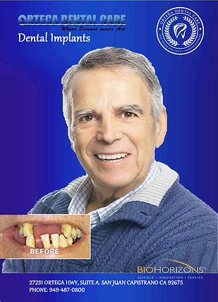 dental implants 2.jpg