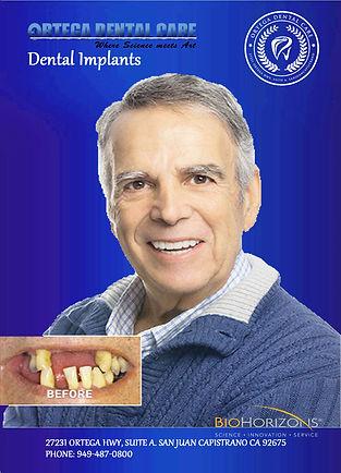 dental implants 2.jpg