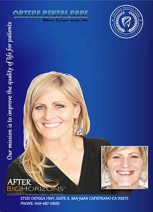dental implants.jpg