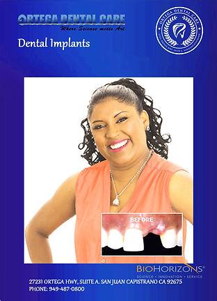 dental implants , ortega dental care , s