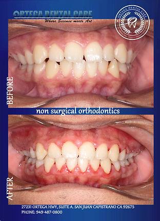 non surgical ortho , ortega dental care.
