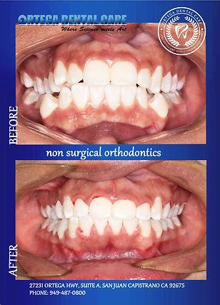 ortega dental care . San Jan Capistrano.