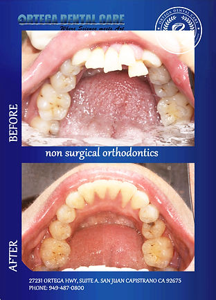 ortho , ortega Dental Care, San Juan Cap