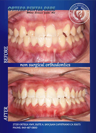 ortho NST .Ortega Dental Care.jpg