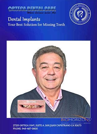 ortega dental care , dental implants. 33