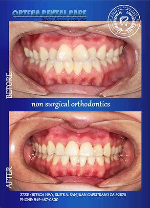 ottho , Ortega Dental Care , (949)487-08