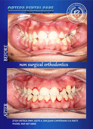 Ortega Dental care , Ortho.jpg