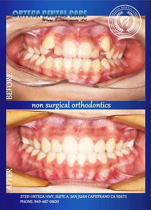 Ortega Dental Care- ortho .jpg