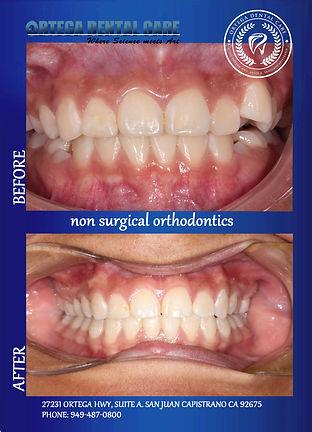 Ortho , ortega dental care.jpg