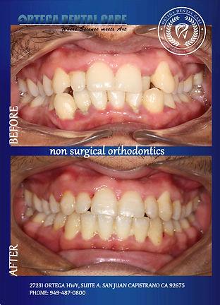 44-ortho. non surgical . Ortega Dental c