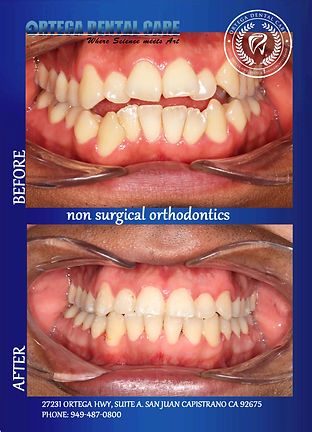 ortho Ortega Dental Care.jpg
