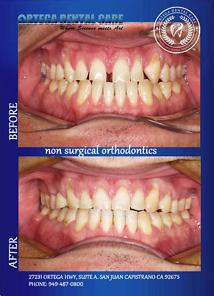 Ortho Ortega Dental Care -.jpg