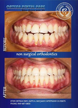 Ortega Dental care , San Juan Capistrano
