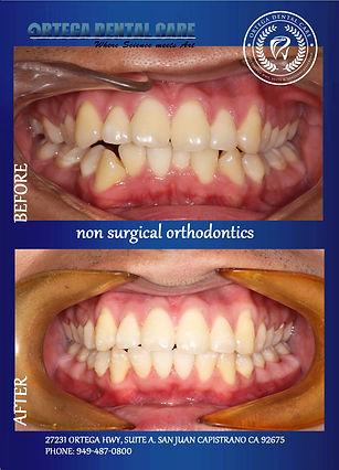 Ortho , Ortega Dental Care. (949)487-080