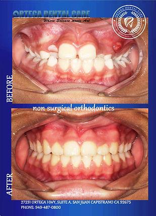 Ortega Dental care , (949)487-0800.jpg
