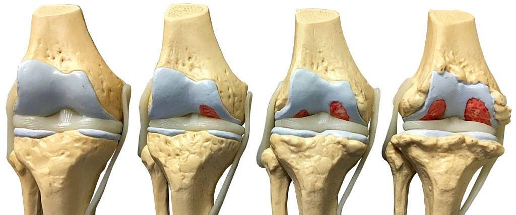 Дегенеративный артрит обоих коленных суставов фото