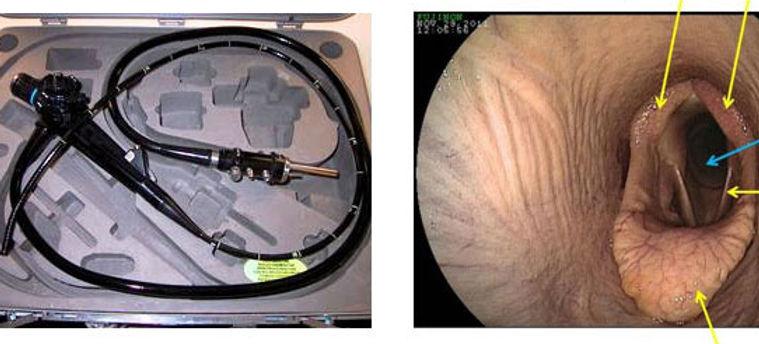 endoscopy-img1.jpg