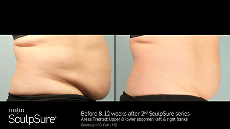 SculpSure BEFORE AND AFTER 7.jpg