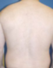 IPL HairRemoval back2.png