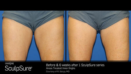 SculpSure InnerThigh_1tx_6weeks.jpg