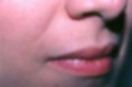 IPL HairRemoval lip2.png