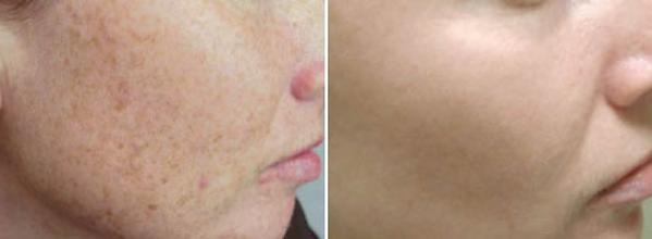 Aging dark spots.png