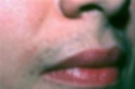 IPL HairRemoval lip1.png