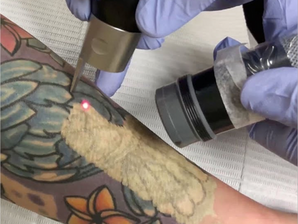 Five Reasons Tattoo Removal is Best With the PicoSure Laser