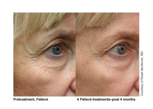 Pelleve treatments, post 4 months.jpg