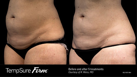 TempSure Firm Before after stomach.jpg