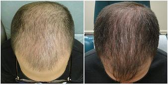 bald man - no caption.jpg