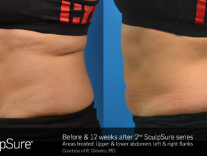 5 Reasons To Do SculpSure