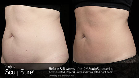 ScupSure BEFORE AND AFTER 1.jpg