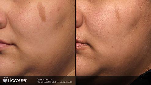 scar skin tag.jpg