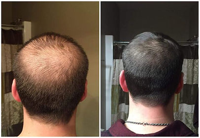 man - back of head shot.jpg